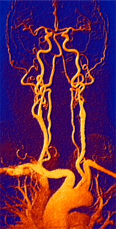right - Chest, neck and head arteries. Coloured magnetic resonance angiography (MRA) scan of a normal carotid system of a 55 year old man. Bottom centre is the aortic arch, which curves over the heart. The arteries that branch off from these are: the brachiocephalic artery (left), the left common carotid artery (centre) and the left subclavian artery (right). The brachiocephalic artery splits again into t Stock Photo - Premium Royalty-Free, Code: 679-08763484