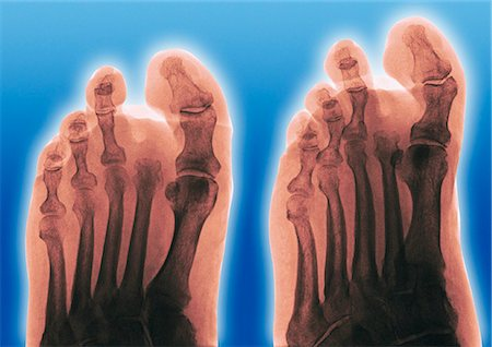 Amputated toe. Coloured frontal (left) and oblique (right) X-rays of a foot of a diabetic, showing an amputated second toe. Stock Photo - Premium Royalty-Free, Code: 679-02684335
