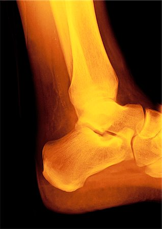 Normal ankle (talocrural) joint, coloured profile X-ray. The front of the foot is at right, with the heel at lower centre. Stock Photo - Premium Royalty-Free, Code: 679-02684350
