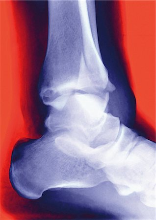 Fractured ankle. Coloured profile X-ray of a distal fibula fracture (upper centre). The fibula is the smaller leg bone running down from top centre. The larger bone is the tibia. The ankle is the joint at which these bones meet the bones of the foot (lower right). Stock Photo - Premium Royalty-Free, Code: 679-02684363
