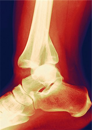Fractured ankle. Coloured profile X-ray showing a fractured tibia (shin bone, centre left). The smaller bone is the fibula, seen behind the tibia (centre). The ankle is the joint where these bones articulate with the bones of the foot (lower left). Stock Photo - Premium Royalty-Free, Code: 679-02684371