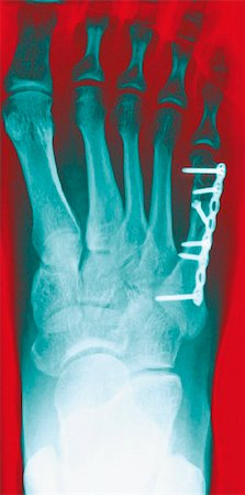 Pinned foot bone fracture. Coloured X-rays of the right foot, showing a metal plate and screws (white) in the foot bone beneath the little toe (upper right). Stock Photo - Premium Royalty-Free, Code: 679-02684380