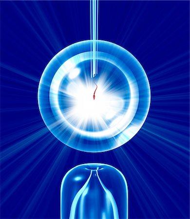sperme - In vitro fertilisation (IVF), conceptual computer artwork. Stock Photo - Premium Royalty-Free, Code: 679-02684651