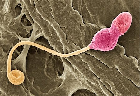 sperme - Deformed sperm cell, coloured scanning electron micrograph (SEM). This cell has residual cytoplasm (lump, pink) below its head (red, top right). Magnification: x3350 when printed at 10 centimetres wide. Stock Photo - Premium Royalty-Free, Code: 679-02681788