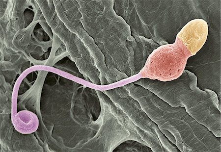 sperme - Deformed sperm cell, coloured scanning electron micrograph (SEM). This cell has residual cytoplasm (lump, orange) below its head (yellow). Magnification: x3350 when printed at 10 centimetres wide. Stock Photo - Premium Royalty-Free, Code: 679-02681789