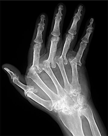 Arthritic hand. X-ray of the hand of a patient with severe rheumatoid arthritis in all of their fingers. The thumb is at left. This is polyarthritis, which means that more than five joints are affected. Rheumatoid arthritis is an autoimmune disorder, where the immune system attacks the body's own tissues, causing progressive joint and cartilage destruction. As the cartilage is worn away, new bone Stock Photo - Premium Royalty-Free, Code: 679-02682328