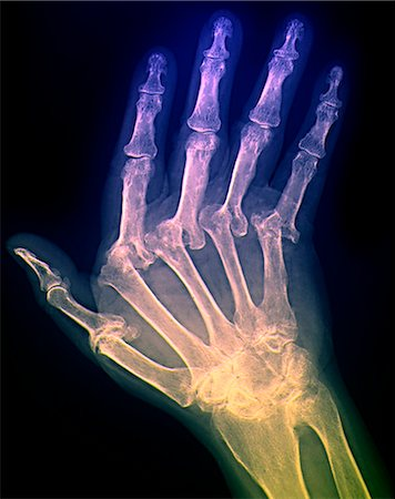 Arthritic hand. Coloured X-ray of the hand of a patient with severe rheumatoid arthritis in all of their fingers. The thumb is at left. This is polyarthritis, which means that more than five joints are affected. Rheumatoid arthritis is an autoimmune disorder, where the immune system attacks the body's own tissues, causing progressive joint and cartilage destruction. As the cartilage is worn away, Stock Photo - Premium Royalty-Free, Code: 679-02682329