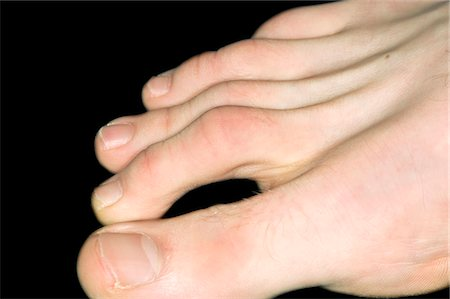 Hammer toe in a 20 year old male. Stock Photo - Premium Royalty-Free, Code: 679-03680318