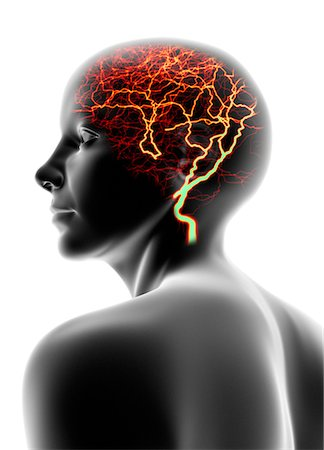 Conceptual computer artwork of a female head that could be used to depict headache, epilepsy or migraine. Stock Photo - Premium Royalty-Free, Code: 679-03680723
