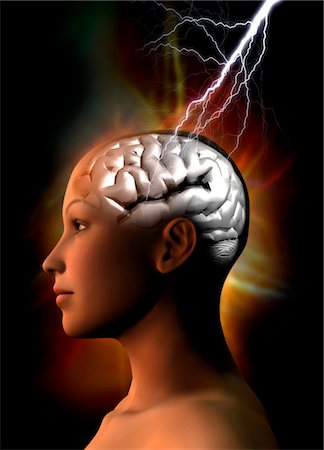 storm lightning - Migraine, conceptual computer artwork. Stock Photo - Premium Royalty-Free, Code: 679-03681135
