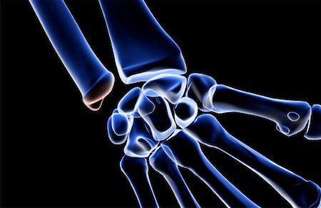 The bones of the wrist Stock Photo - Premium Royalty-Free, Code: 671-02092611