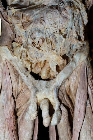 exhibition - Plastinated Male Human Abdominal Cavity and Pelvis Stock Photo - Rights-Managed, Code: 700-06038090