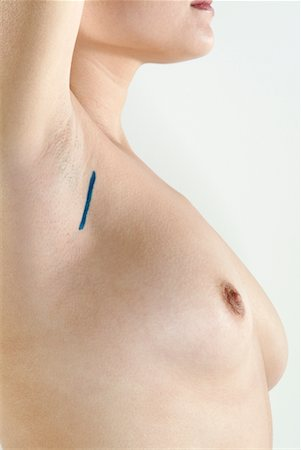 Woman With Marking for Breast Implant Stock Photo - Rights-Managed, Code: 700-00274815