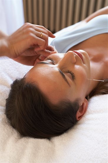 Acupuncture Stock Photo - Premium Rights-Managed, Artist: Jerzyworks, Image code: 700-00609576