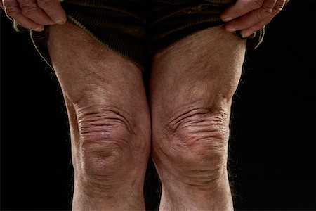 Person Showing Knees Stock Photo - Rights-Managed, Code: 700-02199970