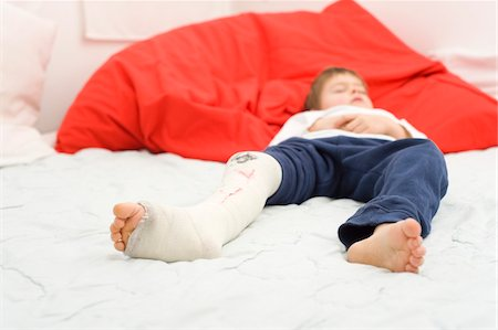 Boy with Cast on Leg Sleeping Stock Photo - Rights-Managed, Code: 700-03777776