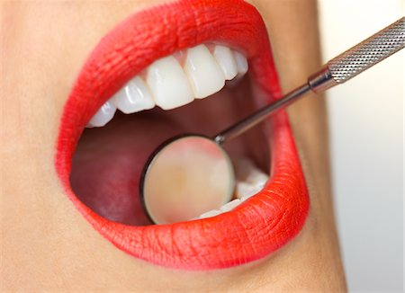 Close up of Woman's Mouth with Red Lipstick during Dental Examination Stock Photo - Rights-Managed, Code: 822-03780898