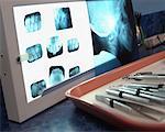 Close-Up of Dental Tools