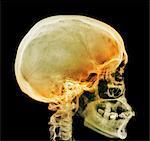 Normale Schädel, Röntgen