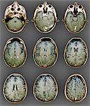 Normal brain, MRI scans