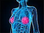 Healthy breasts, artwork