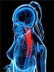 Back pain, conceptual computer artwork.