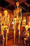 PHILADELPHIA PA NORMALE RIESE UND ZWERG MENSCHLICHE SKELETTE AUF DIE MUTTER MUSEUM AUSGESTELLT