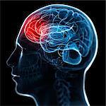 Migraine, conceptual computer artwork.