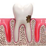 Dental plaque, computer artwork.