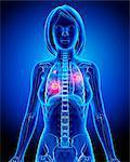 Female lung cancer, computer artwork.
