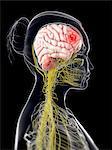 Brain cancer, computer artwork.