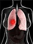 Lung cancer, computer artwork.