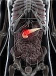 Pancreatic cancer, computer artwork.