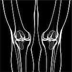 Human knee, computer artwork.