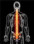 Spine pain, computer artwork.