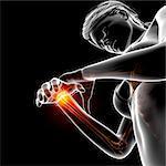 Wrist pain, computer artwork.