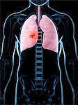 Human lung cancer, computer artwork.