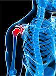 Human shoulder pain, computer artwork.