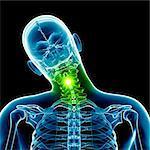 Human neck bending sideways, computer illustration.