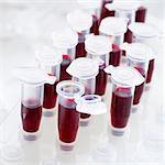 Blood samples in centrifuge tubes.