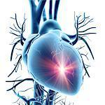 Heart attack, conceptual computer artwork.