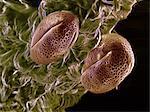 High vacuum SEM of Brassica rapa oleifera pollen grains