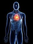 Illustration of a man's heart tumour.