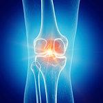 Illustration of painful knee.