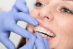 Orthodontist tightening braces.