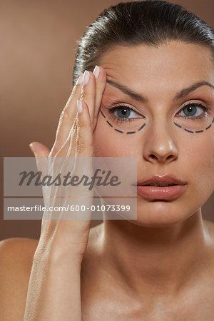 Woman Having Eyelid Surgery