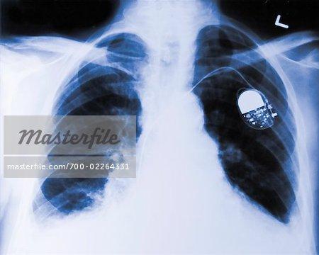 Radiographie d'un stimulateur cardiaque