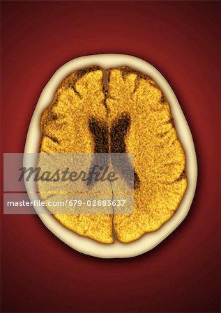 Gesundes Gehirn. Farbige Computertomographie (CT) Scan eines ...