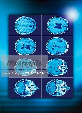 Normale Gehirn. Farbige axial (Querschnitt) Computertomographie (CT ...