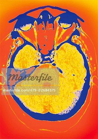 Normale Gehirn, farbige axial (Querschnitt) Computertomographie (CT ...